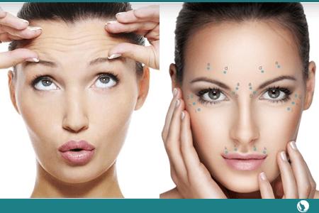 Botox. Elimina arrugas en el acto