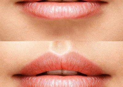 Promoción labios