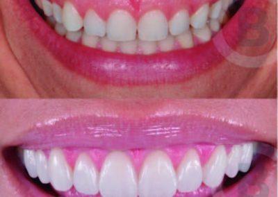 Corrección de sonrisa gingival con bótox